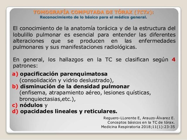 TOMOGRAFÍA COMPUTADA DE TÓRAX (TCTx): Reconocimiento de lo básico para el médico general. a) opacificación parenquimatosa...