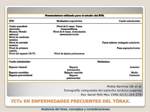 TCTx EN ENFERMEDADES FRECUENTES DEL TÓRAX. Motta-Ramirez GA et al. Tomografía computada del estrecho torácico superior. Re...