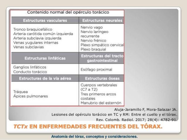 TCTx EN ENFERMEDADES FRECUENTES DEL TÓRAX. Aluja-Jaramillo F, Mora-Salazar JA. Lesiones del opérculo torácico en TC y RM: ...