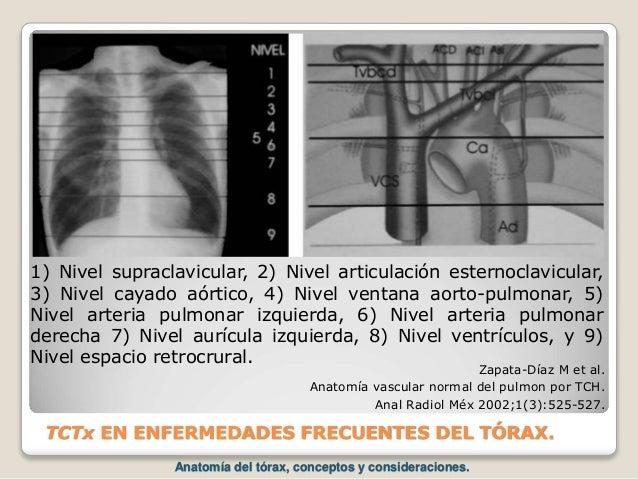 TCTx EN ENFERMEDADES FRECUENTES DEL TÓRAX. Zapata-Díaz M et al. Anatomía vascular normal del pulmon por TCH. Anal Radiol M...