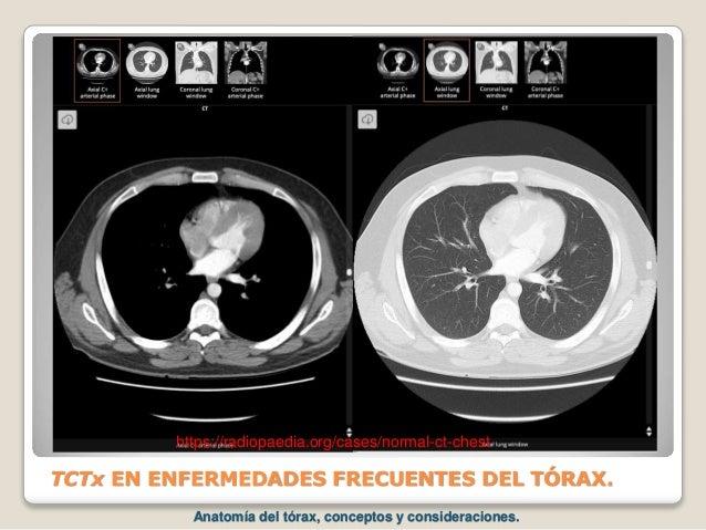 TCTx EN ENFERMEDADES FRECUENTES DEL TÓRAX. https://radiopaedia.org/cases/normal-ct-chest Anatomía del tórax, conceptos y c...