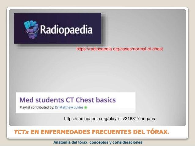 TCTx EN ENFERMEDADES FRECUENTES DEL TÓRAX. https://radiopaedia.org/cases/normal-ct-chest https://radiopaedia.org/playlists...