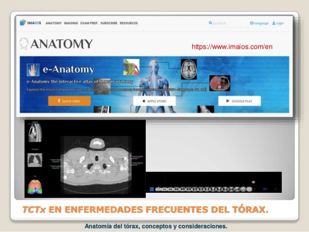 TCTx EN ENFERMEDADES FRECUENTES DEL TÓRAX. https://www.imaios.com/en Anatomía del tórax, conceptos y consideraciones.