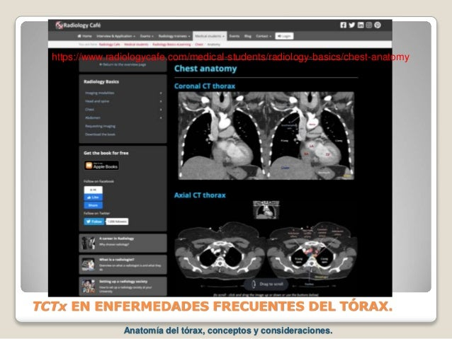 TCTx EN ENFERMEDADES FRECUENTES DEL TÓRAX. https://www.radiologycafe.com/medical-students/radiology-basics/chest-anatomy A...