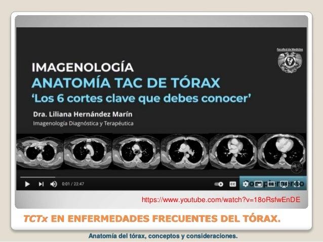 TCTx EN ENFERMEDADES FRECUENTES DEL TÓRAX. https://www.youtube.com/watch?v=18oRsfwEnDE Anatomía del tórax, conceptos y con...