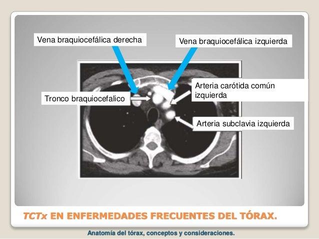 TCTx EN ENFERMEDADES FRECUENTES DEL TÓRAX. Arteria carótida común izquierda Arteria subclavia izquierda Tronco braquiocefa...