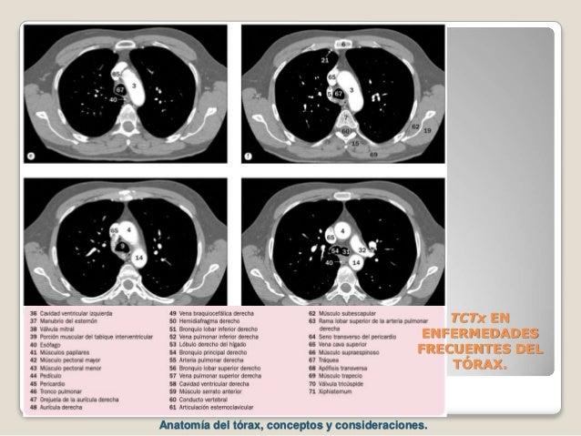 TCTx EN ENFERMEDADES FRECUENTES DEL TÓRAX. Anatomía del tórax, conceptos y consideraciones.