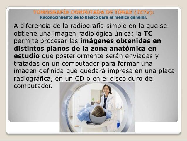 A diferencia de la radiografía simple en la que se obtiene una imagen radiológica única; la TC permite procesar las imágen...