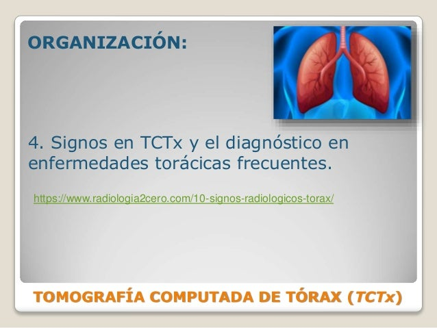 TOMOGRAFÍA COMPUTADA DE TÓRAX (TCTx) ORGANIZACIÓN: 4. Signos en TCTx y el diagnóstico en enfermedades torácicas frecuentes...