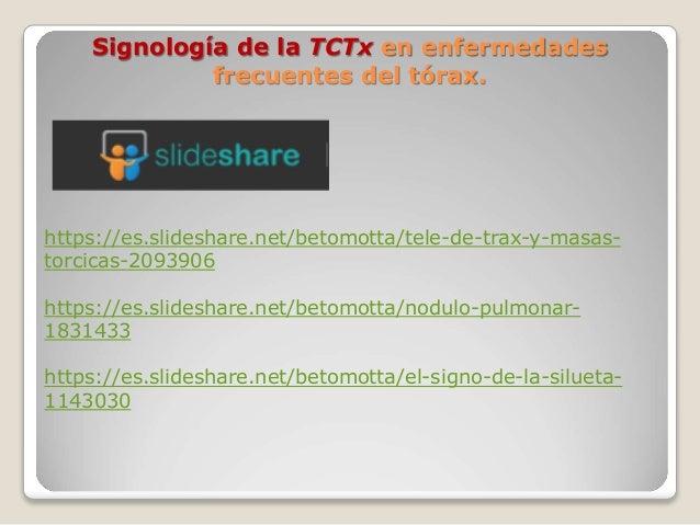 Signología de la TCTx en enfermedades frecuentes del tórax. https://es.slideshare.net/betomotta/tele-de-trax-y-masas- torc...