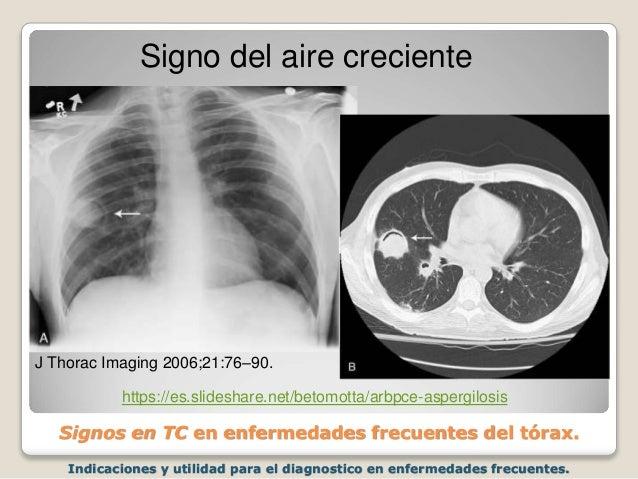 Indicaciones y utilidad para el diagnostico en enfermedades frecuentes. Signos en TC en enfermedades frecuentes del tórax....