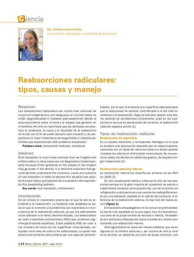 Reabsorciones radiculares: tipos, causas y manejo Resumen Las reabsorciones radiculares son mucho más comunes de lo que no...