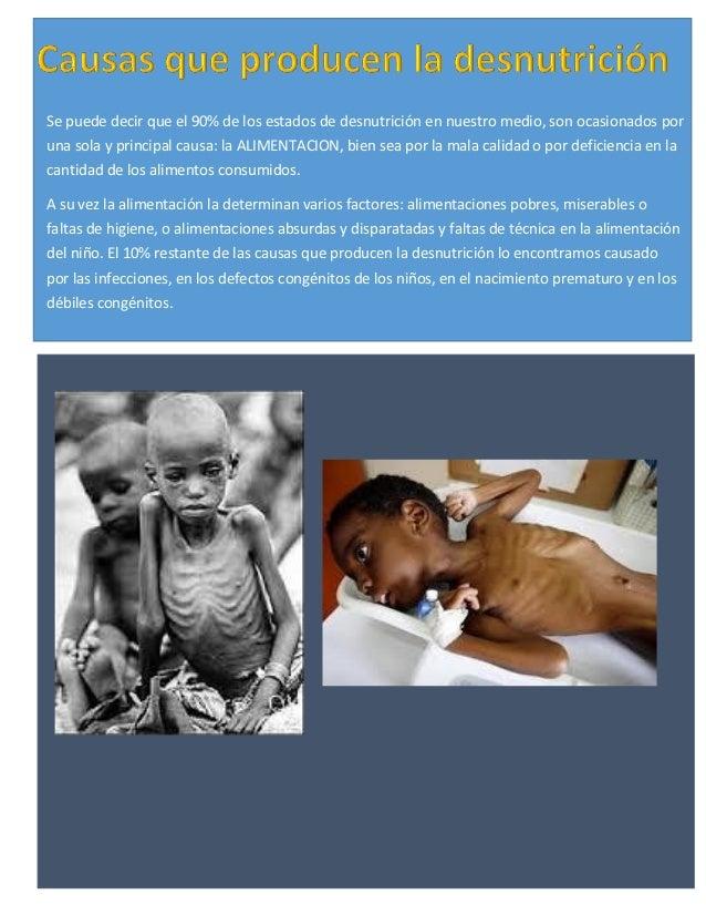 Se puede decir que el 90% de los estados de desnutrición en nuestro medio, son ocasionados por una sola y principal causa:...