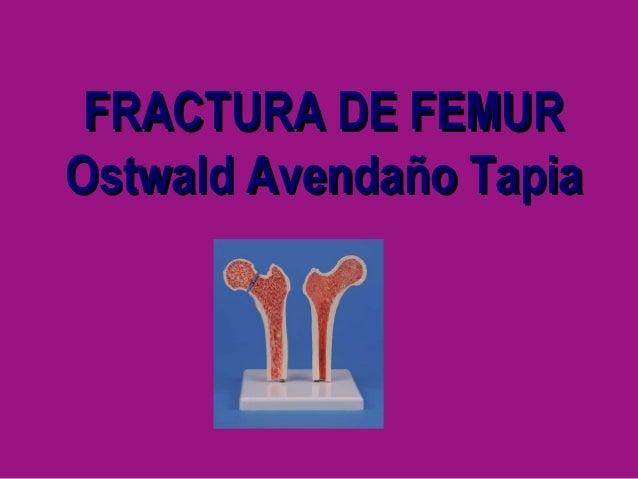 25.  fractura de femur Slide 2
