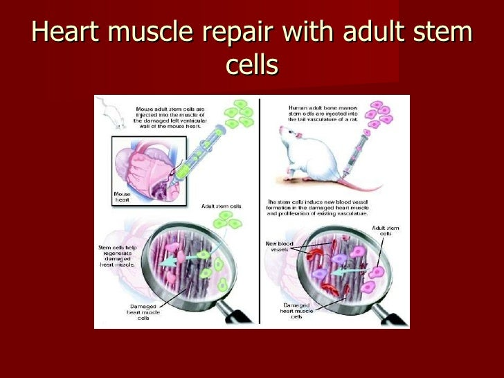 heart diseases and stem cell transplantation The heart contains a small amount of stem cells, the cardiac stem cells, that are produced when there is a need for production of more heart cells or for an active replacement of damaged ones these cardiac cells are produced in high quantity for about one week following an infarction, actively repairing the damaged areas of the heart.