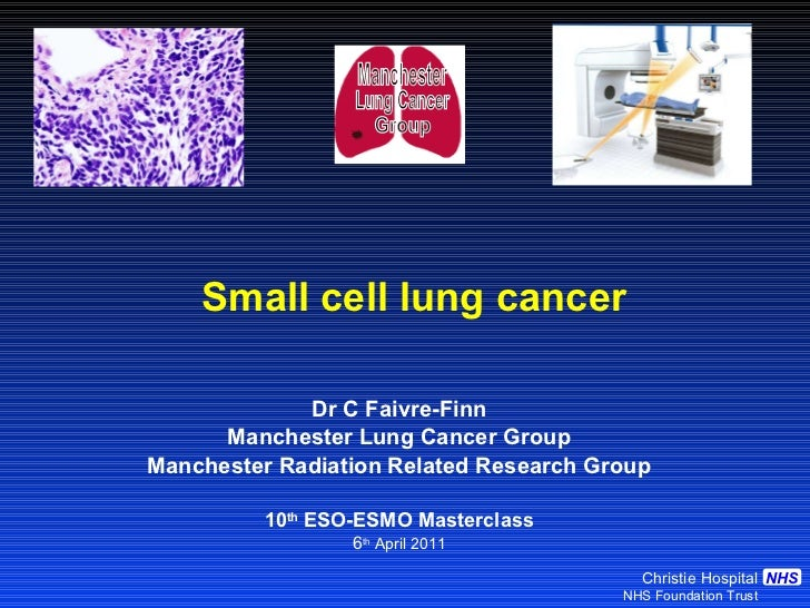 Small cell lung cancer Dr C Faivre-Finn Manchester Lung Cancer Group Manchester Radiation Related Research Group 10 th  ES...
