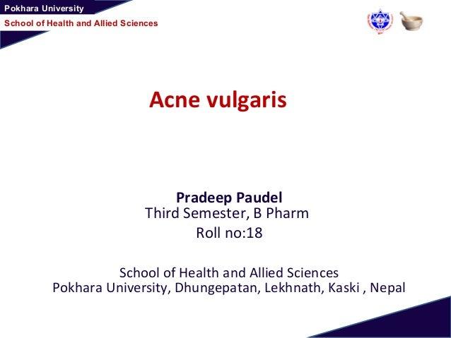 Pokhara University School of Health and Allied Sciences Acne vulgaris Pradeep Paudel Third Semester, B Pharm Roll no:18 Sc...
