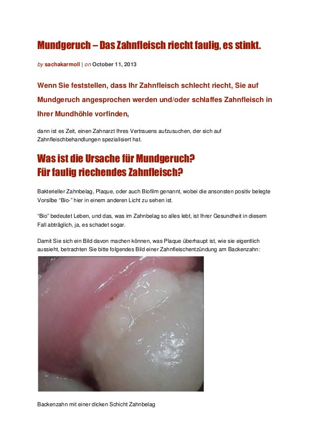 Mundgeruch – Das Zahnfleisch riecht faulig, es stinkt. by sachakarmoll | on October 11, 2013 Wenn Sie feststellen, dass Ih...