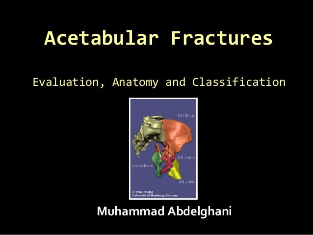Acetabular FracturesAcetabular Fractures Evaluation, Anatomy and ClassificationEvaluation, Anatomy and Classification Muha...