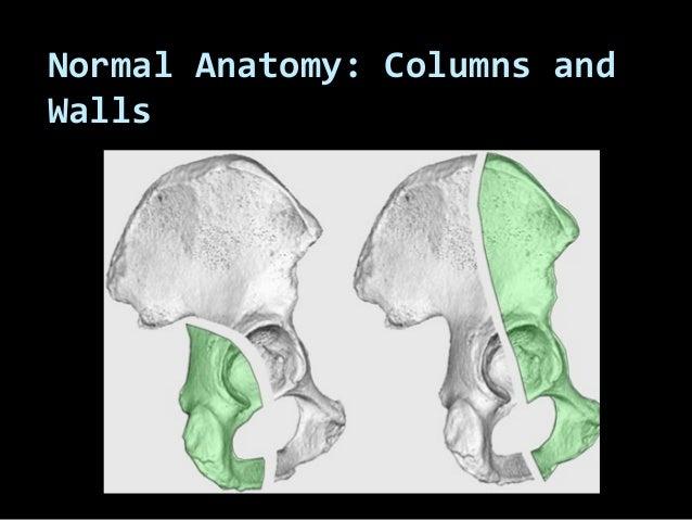 26. acetabular fractures   anatomy, evaluation and classification  - muhammad abdelghani Slide 2
