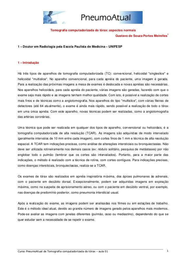 Tomografia computadorizada do tórax: aspectos normais  Gustavo de Souza Portes Meirelles1  1 – Doutor em Radiologia pela E...