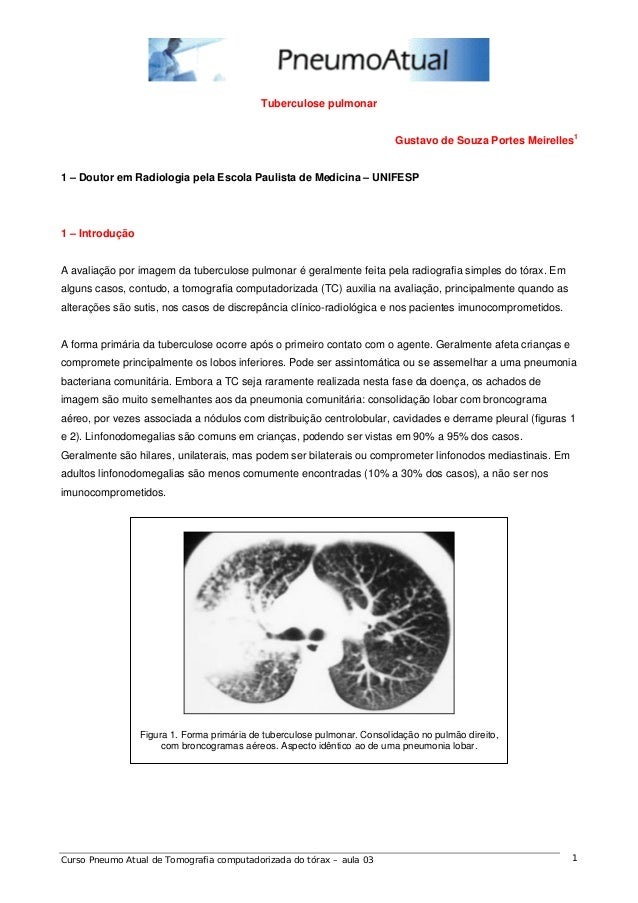 Tuberculose pulmonar  Gustavo de Souza Portes Meirelles1  1 – Doutor em Radiologia pela Escola Paulista de Medicina – UNIF...