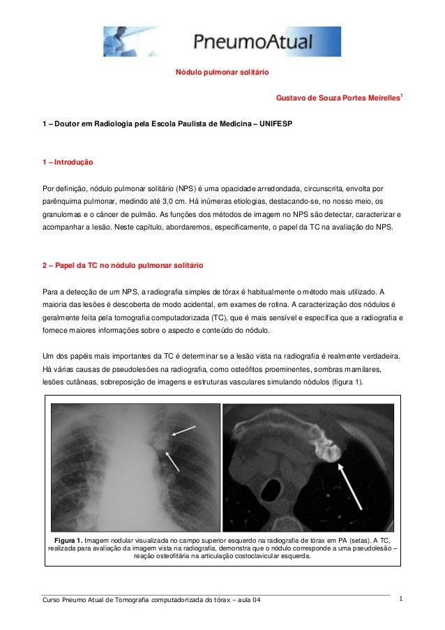 Nódulo pulmonar solitário  Gustavo de Souza Portes Meirelles1  1 – Doutor em Radiologia pela Escola Paulista de Medicina –...