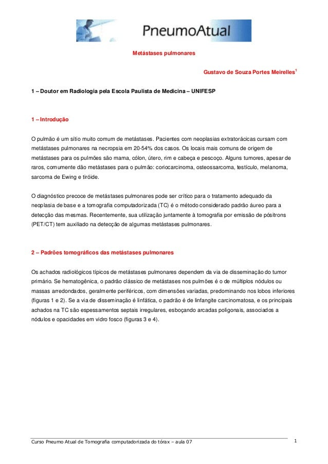 Metástases pulmonares  Gustavo de Souza Portes Meirelles1  1 – Doutor em Radiologia pela Escola Paulista de Medicina – UNI...