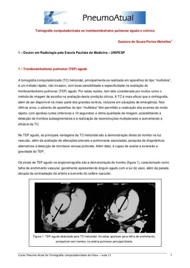 Tomografia computadorizada no tromboembolismo pulmonar agudo e crônico  Gustavo de Souza Portes Meirelles1  1 – Doutor em ...
