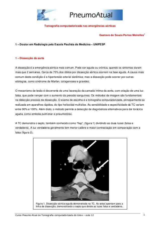 Tomografia computadorizada nas emergências aórticas  Gustavo de Souza Portes Meirelles1  1 – Doutor em Radiologia pela Esc...
