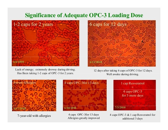6 Significance Of Adequate OPC 3