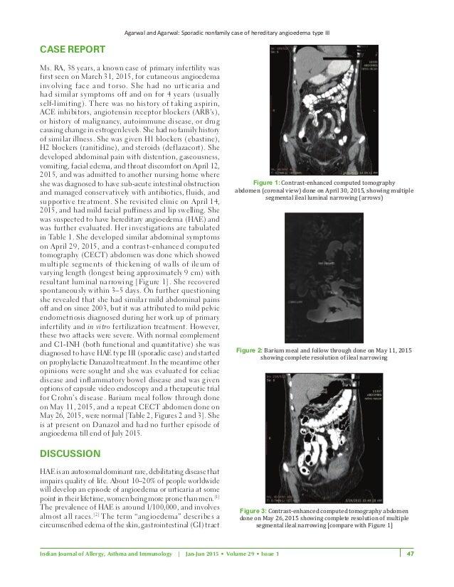 Arun article 2 Slide 3