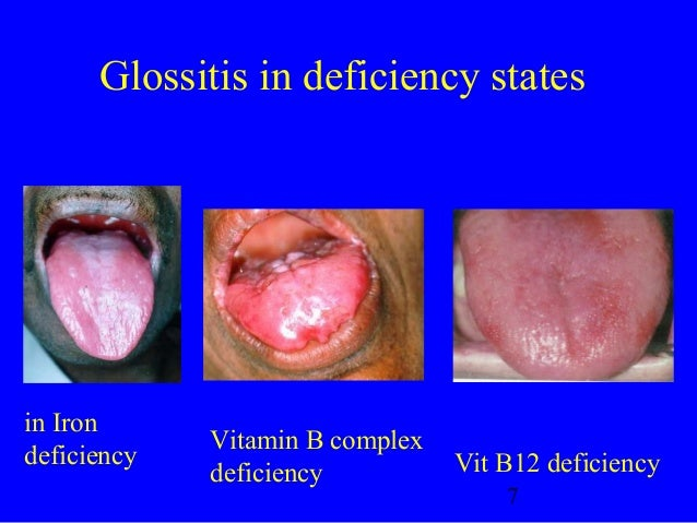 Oral manif of system dis B12 Deficiency Tongue