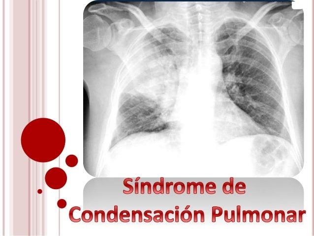 Afecta el parénquima pulmonar y los bronquios de pequeño calibre Antes se lo conocía «Neumonía y bronconeumonía» «Neumopat...