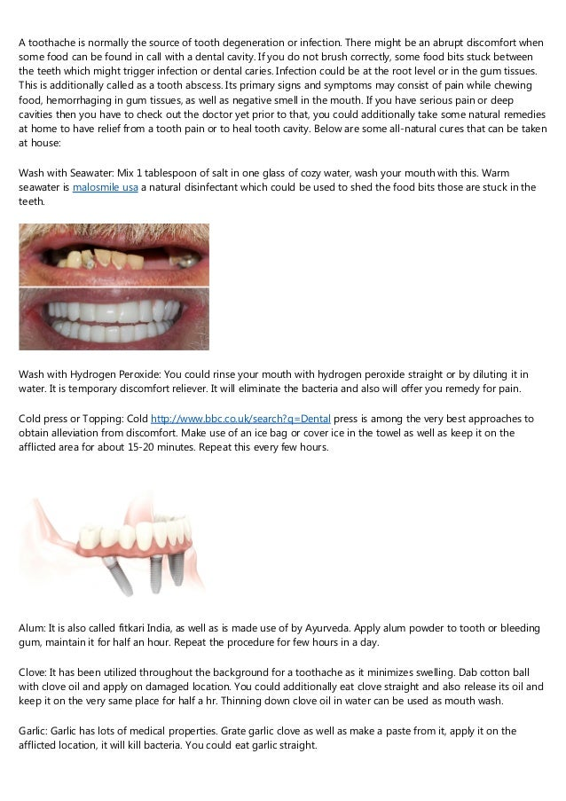 Clear Choice Reviews >> What Not To Do In The Clear Choice Dental Implants Reviews Complaints