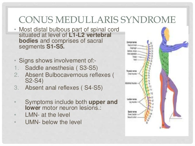 spinal stenosis essay Sample mla research paper the research paper on the following pages is an example of how a paper is put together following mla guidelines.