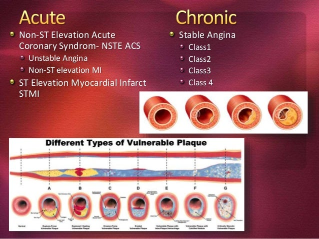 Non-ST Elevation Acute Coronary Syndrom- NSTE ACS Unstable Angina Non-ST elevation MI ST Elevation Myocardial Infarct STMI...