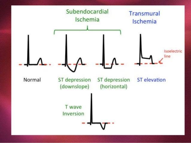 Ventricular Disfunction Hemodinamic Assessment Hypovolemia Cardiogenic shock Arrhythmias, conduction disturbances Pericard...