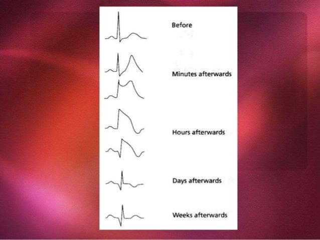 Complication Type Manifestations Ischemic Angina, reinfarction, infarct extension Mechanical Heart failure, cardiogenic sh...