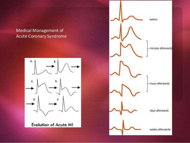Ischemic Heart Disease Angina Pectoris Chest discomfort = prolonged, recurrent, different qualities Cause = transient myoc...