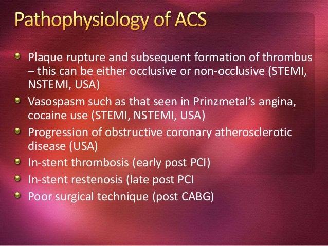 Acute coronary syndromes can also be due to secondary causes Thyrotoxicosis Anemia Tachycardia Hypotension Hypoxemia Ateri...