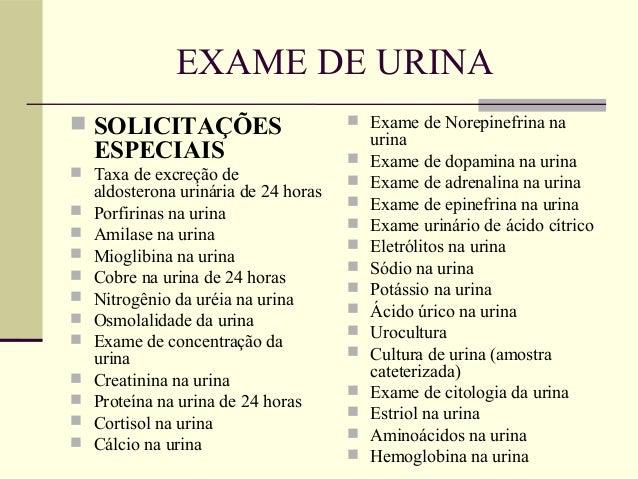 Exame de urina 2
