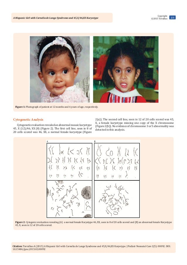 Cornelia de Lange Syndrome Case Report
