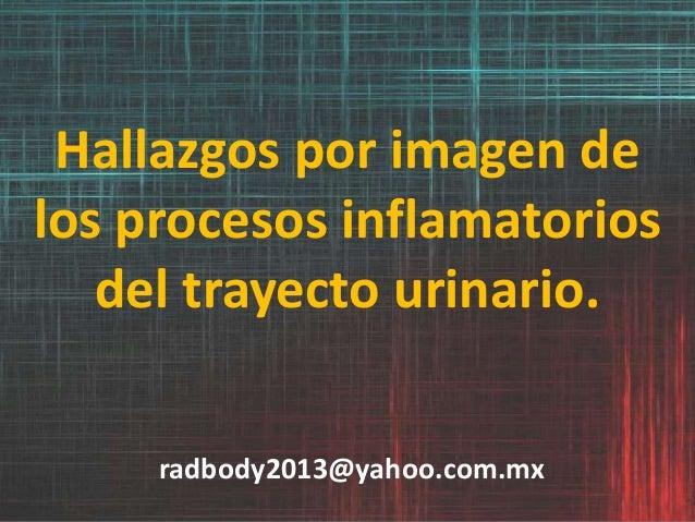 Hallazgos por imagen de los procesos inflamatorios del trayecto urinario. radbody2013@yahoo.com.mx