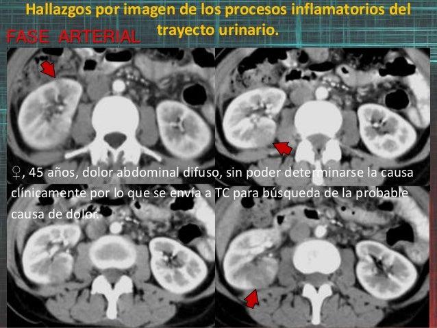 Hallazgos por imagen de los procesos inflamatorios del trayecto urinario.FASE ARTERIAL ♀, 45 años, dolor abdominal difuso,...