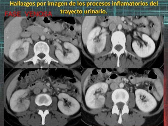 Hallazgos por imagen de los procesos inflamatorios del trayecto urinario.FASE VENOSA