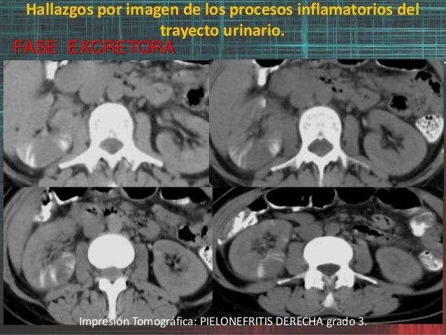 Hallazgos por imagen de los procesos inflamatorios del trayecto urinario. FASE EXCRETORA Impresión Tomográfica: PIELONEFRI...