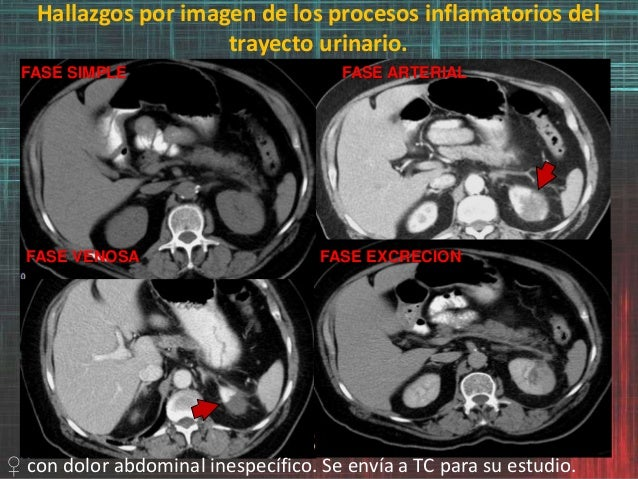 Hallazgos por imagen de los procesos inflamatorios del trayecto urinario. FASE SIMPLE FASE ARTERIAL FASE VENOSA FASE EXCRE...