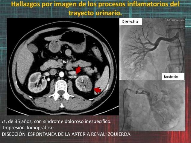 Hallazgos por imagen de los procesos inflamatorios del trayecto urinario. ♂, de 35 años, con síndrome doloroso inespecífic...
