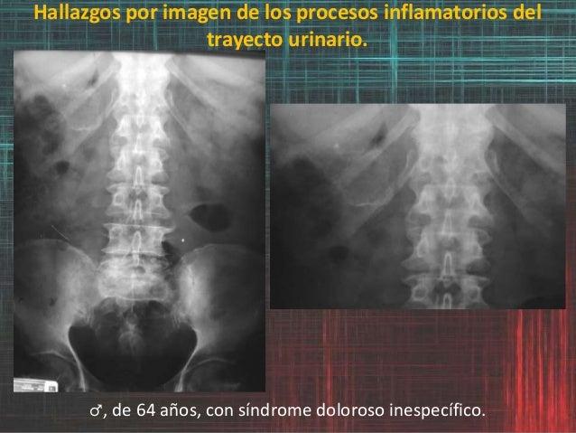 Hallazgos por imagen de los procesos inflamatorios del trayecto urinario. ♂, de 64 años, con síndrome doloroso inespecífic...